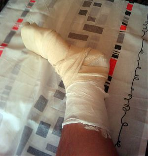 Гипс на ноге
